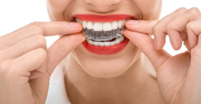 invisalign treatment at Magic Dental