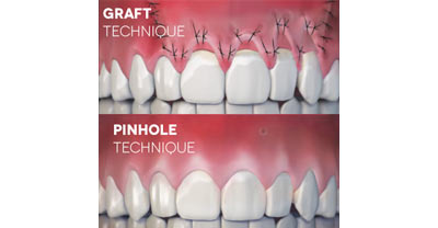 pinhole treatment at Magic Dental